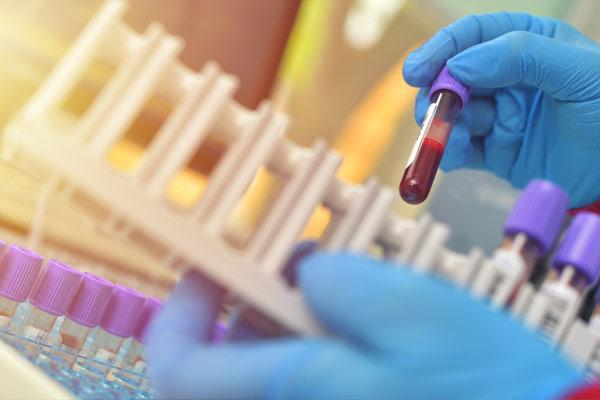 hematology, blood vials