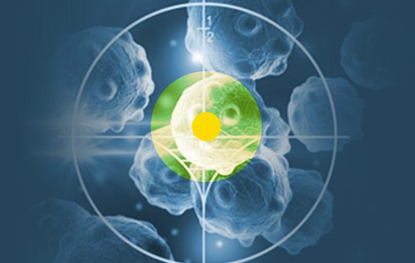 psma pet prostate cancer, precise targeting of tumors